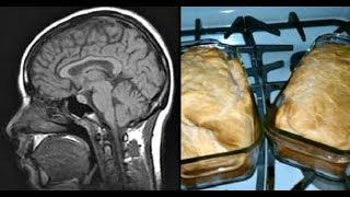 ОСТОРОЖНО — болезнь Альцгеймера! ЭТИ! продукты сохранят МОЛОДОСТЬ МОЗГА